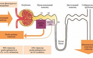 Сахароснижающие препараты нового поколения при диабете 2 типа SGLT-2 ингибиторы Gliflozyny