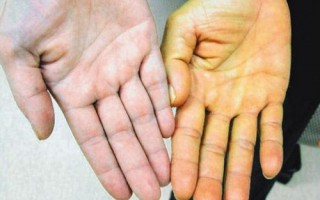 Рак поджелудочной железы признаки и проявления, сколько живут, как лечить