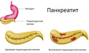 Липаза норма в крови, отклонения
