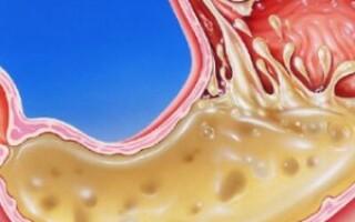 Химия формула сахараГестационный диабет