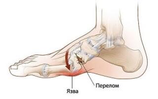 Что такое стопа Шарко диабетическая остеоартропатия причины появления, симптомы и лечение