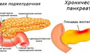 Реабилитация при обострении панкреатита