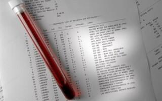 Немного латыни как обозначается сахар в анализе крови и что означают другие показатели в расшифровке
