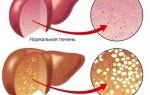 Симптомы диффузии паренхимы и что с этим делать