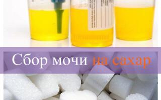 Анализ мочи на сахар алгоритм сбора, норма и расшифровка