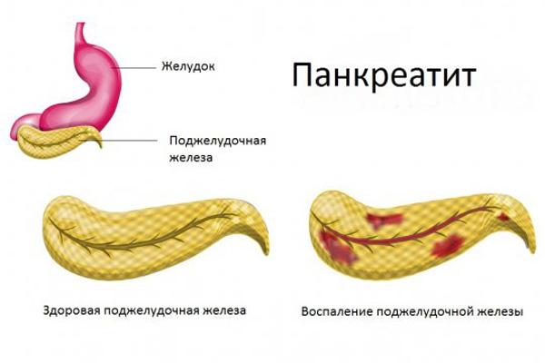 Повышена эхогенность поджелудочной железы: что это такое, что значит, лечение
